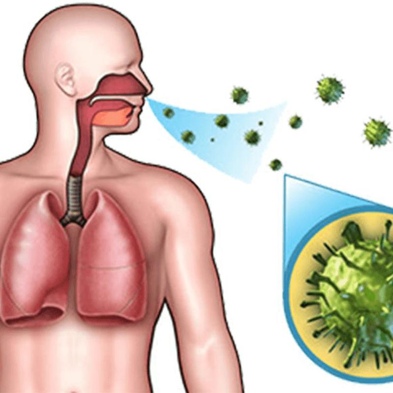 Üst solunum yolu enfeksiyonu (akut)